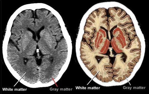 Brain diagram white and grey matter