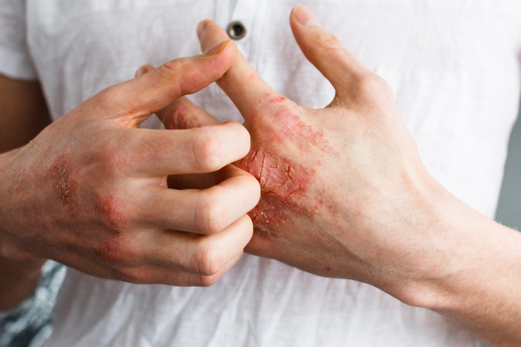 medical cannabis for painful skin condiitons