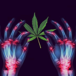 Arthritis patient X-Ray of hands, showing medical marijuana and medical cannabis helps ease pain